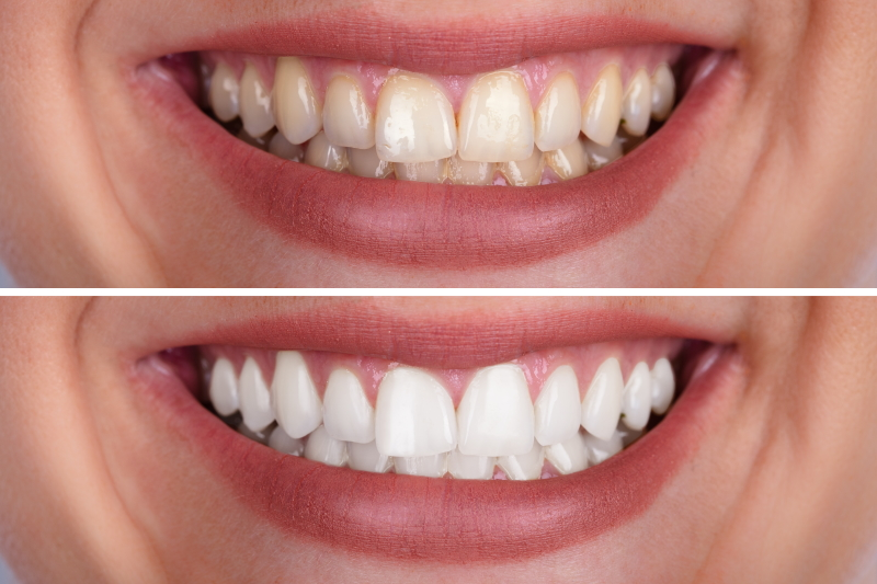 Colour Me Bronze Teeth Whitening Before and After