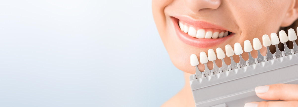 Teeth Whitening at Colour Me Bronze